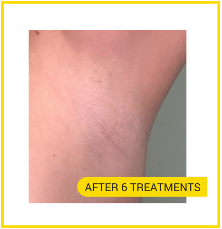 After 6 treatments